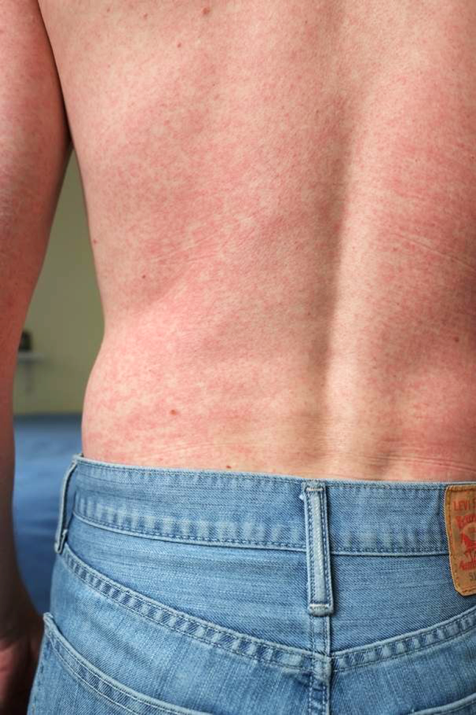 A blotchy rash covers a patient's back. A diagnostic test showed the rash was caused by the Zika virus.