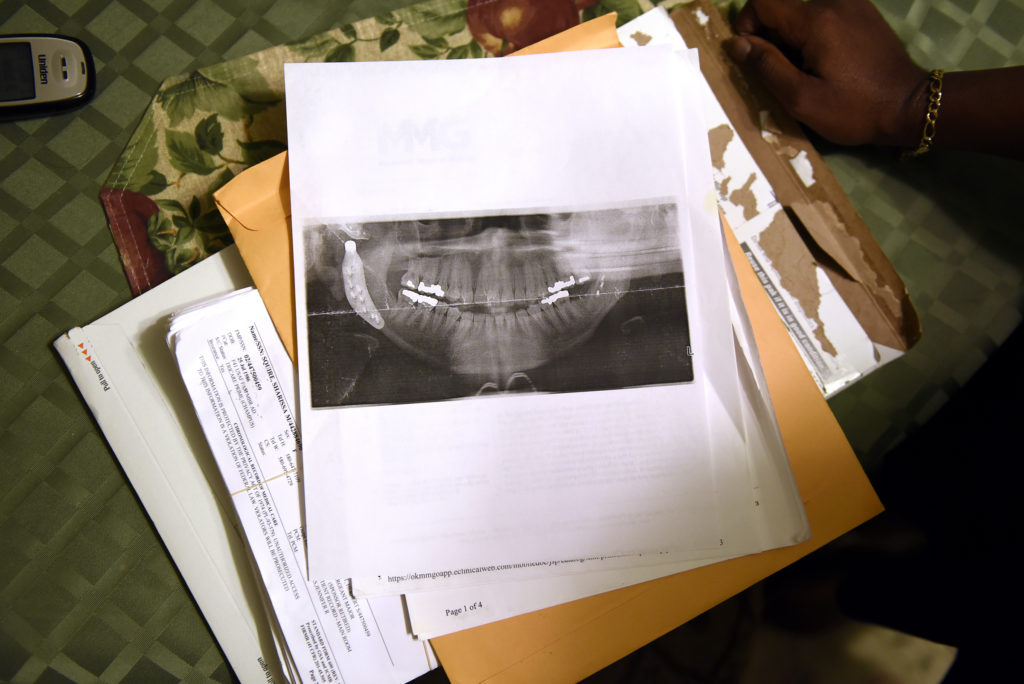A jaw x-ray from one of Sharissa Derricott's many surgeries sits on the table at her parents' home in Lawton, Okla.