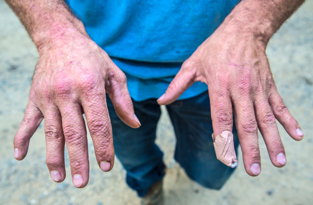 Bram Ates shows the skin grafts on the backs of his hands. Ates used his hands to shield his face when an explosion erupted at a VT Halter shipyard.