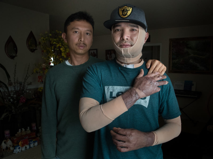 "Chuong Nguyen (left) helps look after his brother, Son, as he recovers from  a severe burn injury at Tesla's car factory in 2017. ""Luckily, I have my  family ..."